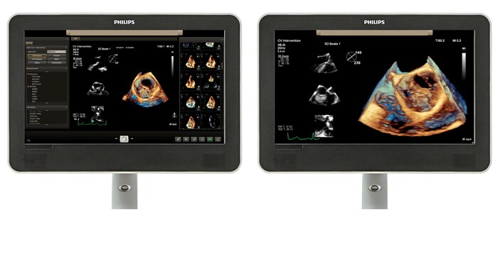 Viewing area comparison with a cardiology ultrasound image on screen.