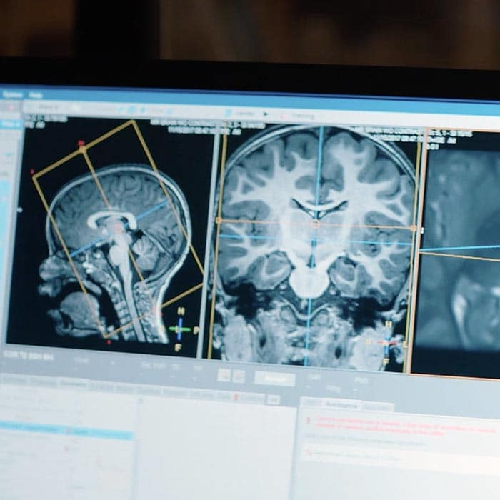 Radiology informatics for improved performance