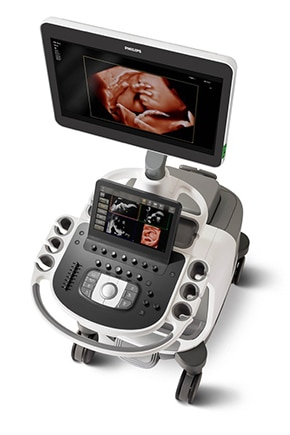 epiq 7 ultrasound machine for obstetrics and gynecology